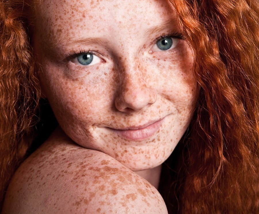 Cheerful freckled girl