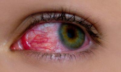Ραγοειδίτιδα: Ποια είναι τα συμπτώματα της πιο άγνωστης ασθένειας των ματιών